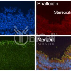 Anti-LSR (Angulin-1) antibody of mouse tissue